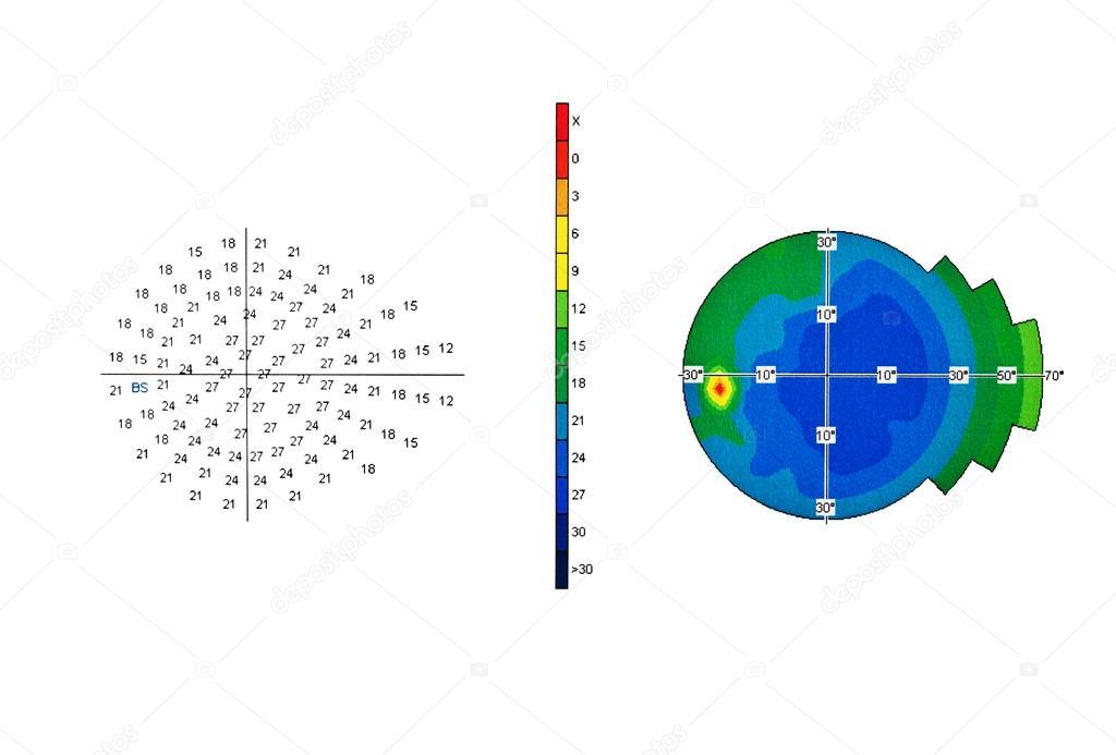 színvakság diagram mi a 30 nézet