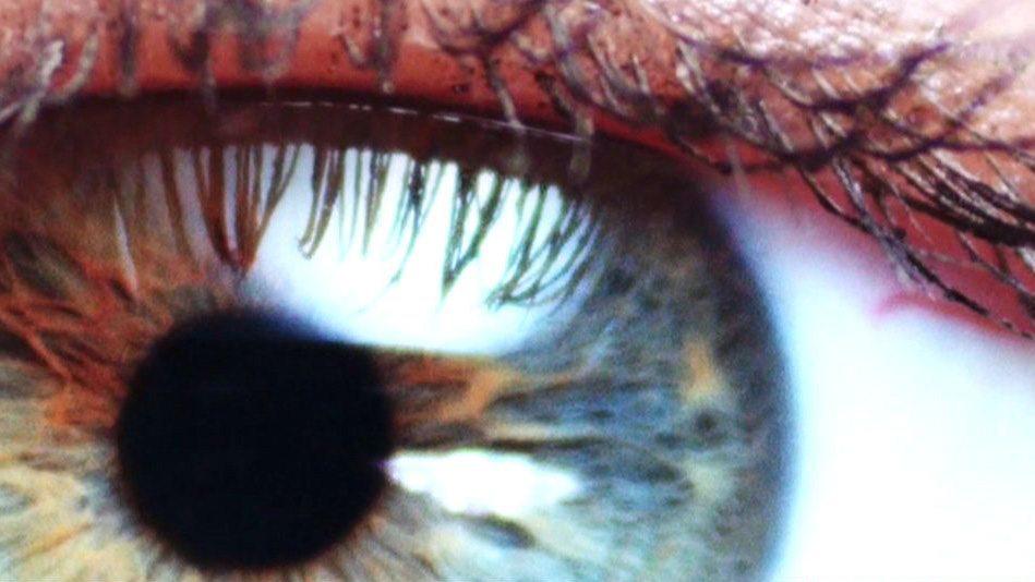 rövidlátás retina leválasztó készülék