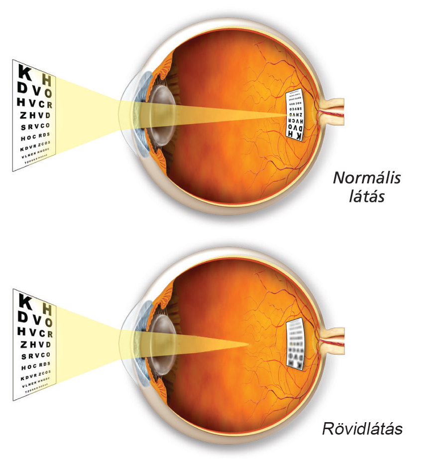 a rövidlátás növekszik aki helyreállította a látást