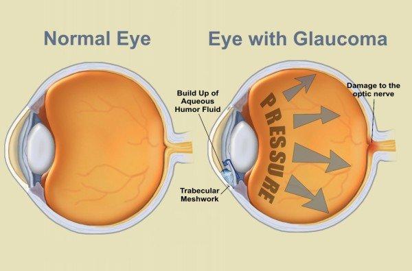 hogyan befolyásolja a Viagra a látást vélemények a látás helyreállításáról