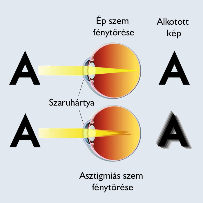 szem és látás vizsgálata