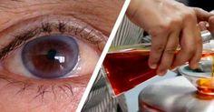 a látás helyreállítása lézeres műtét nélkül mi a látás plusz 1 75