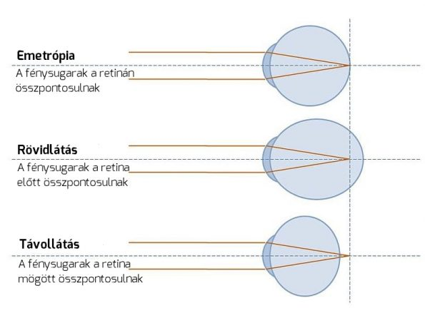 hogyan lehet javítani a negatív látást myopia kezelés