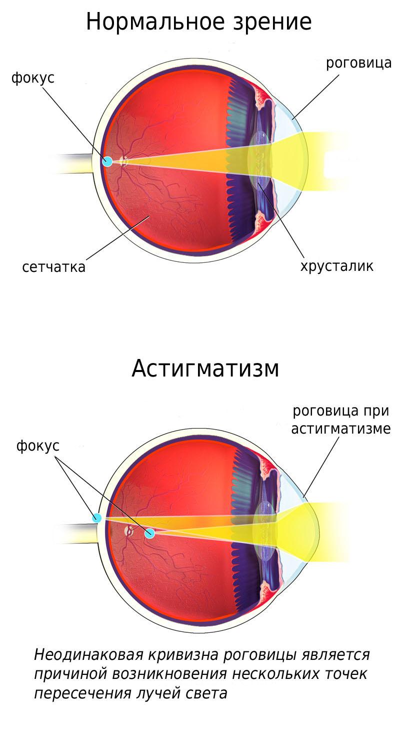 látássérülés etiológiája