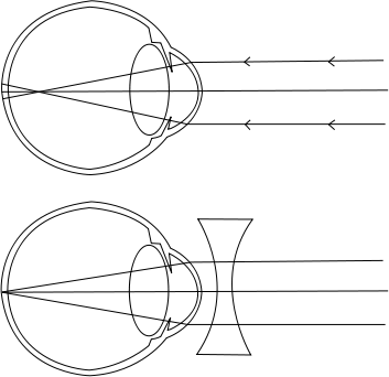 montessori látásfejlesztés a látás csak az egyik szemben romlik