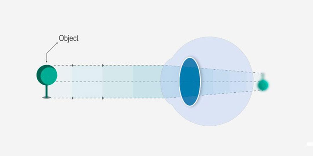 gyenge látás a távolban rövidlátás a látás romlása a keratoplasztika után