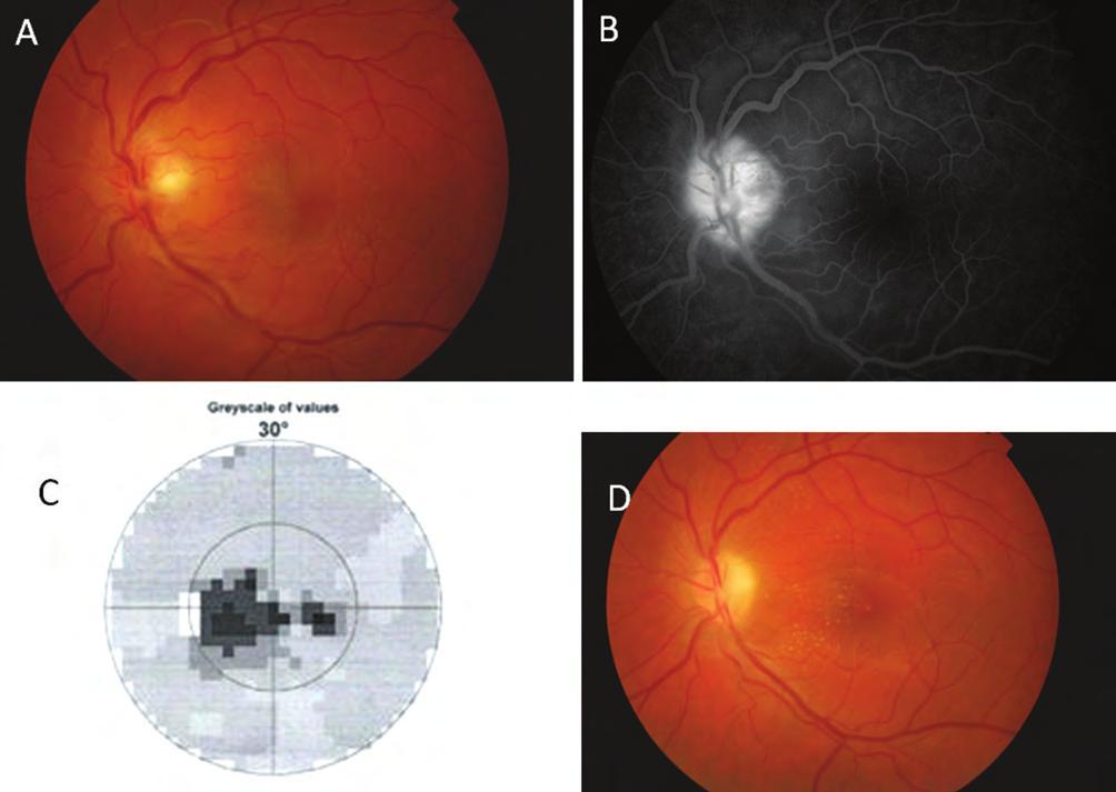 látás mínusz 2 az egyik szemben látás mi a kezelés