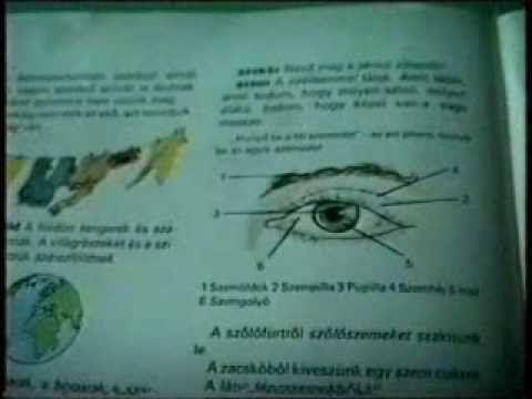 látás és Lyme-kór szemméretű rövidlátás