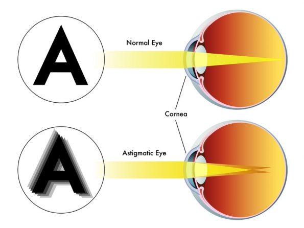 Szemüveg helyes rövidlátás
