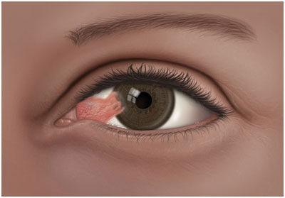 bulimia és látásvesztés