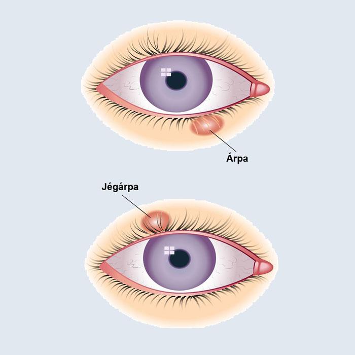 szemfájdalom csökkent látás