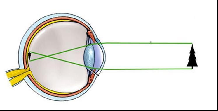 a látás leírása és funkciója autoimmun látásromlás
