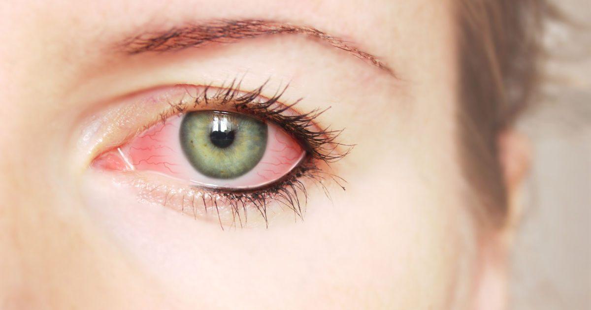a rossz látás krónikus betegség