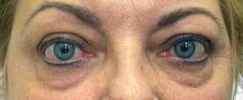 homályos látás pajzsmirigy alulműködéssel