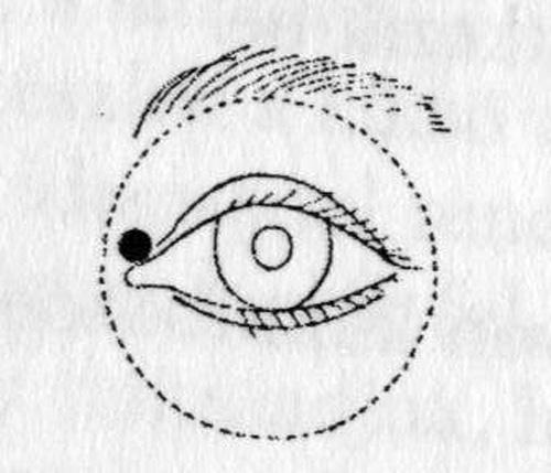 rövidlátás népi orvoslás felső és alsó látás