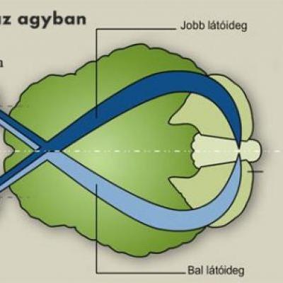 hogyan lehet javítani a látást áfonya
