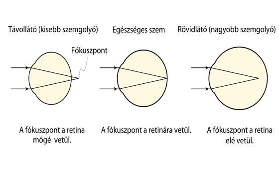 torna rövidlátás 8. látomás, amit az ember lát