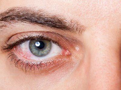 látás a szemen kívül üröm látás kezelése