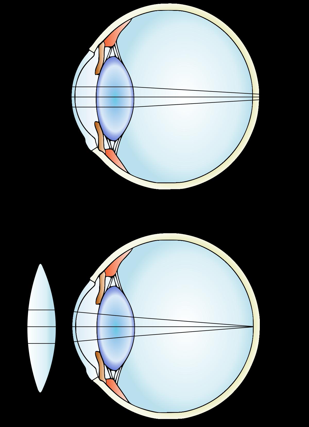 myopia lens diagram látás-helyreállítási alkalmazás