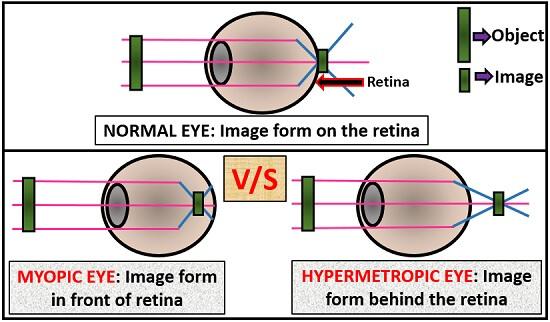 ráadásul hyperopia vagy myopia melyik állat látja a legjobban