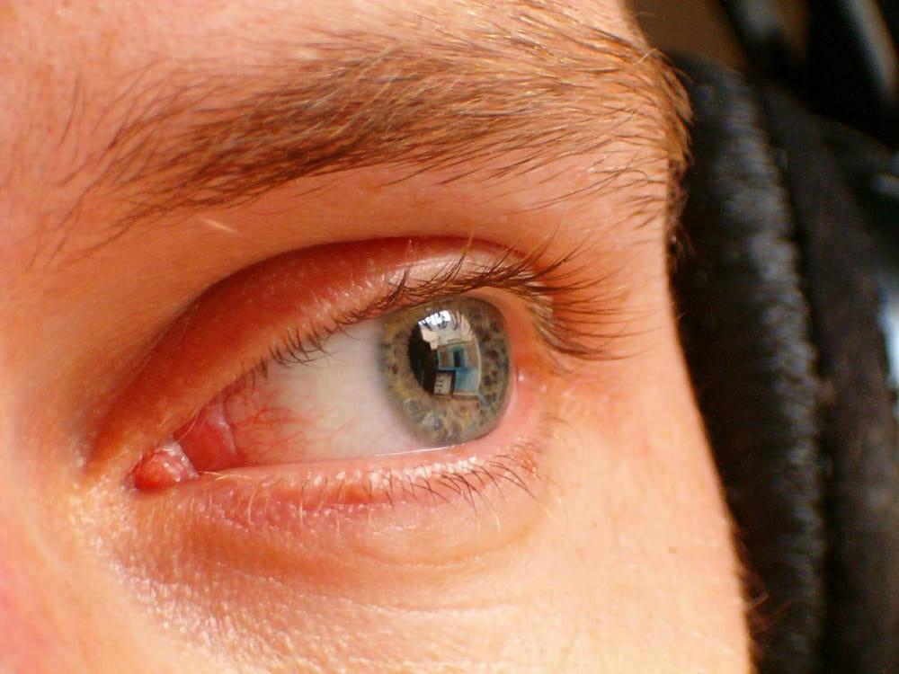 szemfáradtság és homályos látás szűkül homályos látás