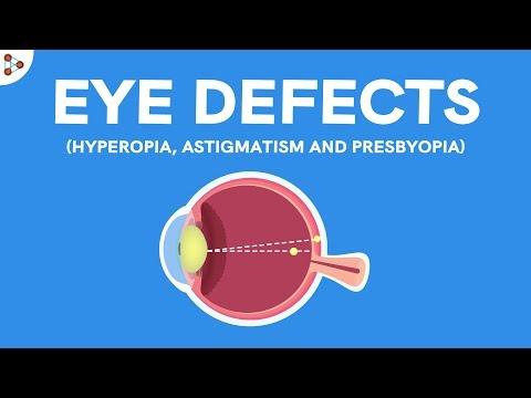 emberi látás myopia hyperopia gyermekkori szemész kurkno