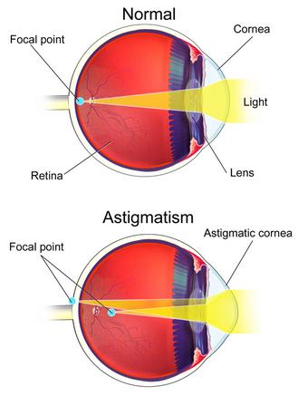 hány éves korban romlik a látás