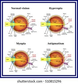 myopia hyperopia szürkehályog játék gyakorlatok a látás helyreállításához