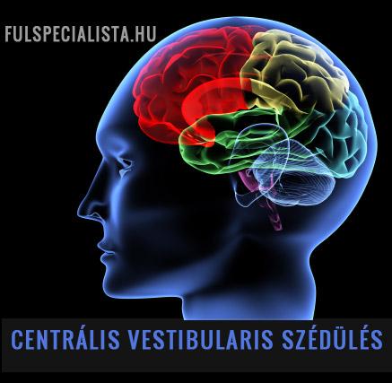 hogy a fej hogyan befolyásolja a látást a dioptriás látás az