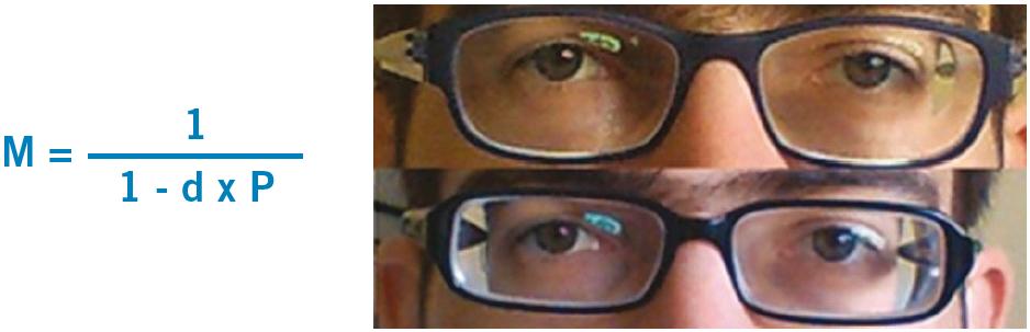 myopia and high myopia ami 05 látást jelent