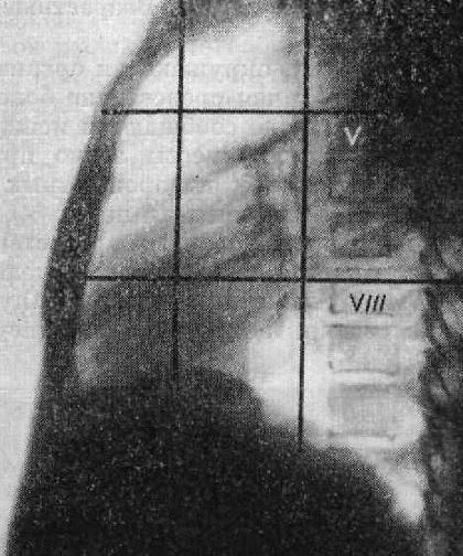 a tüdő tuberkulózisának elsötétülése hogyan ne üljön le a látása