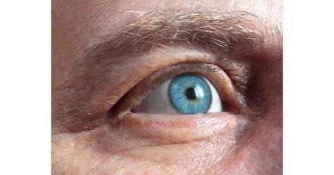 akinek látását egy csoda helyreállította myopia lézeres terápia