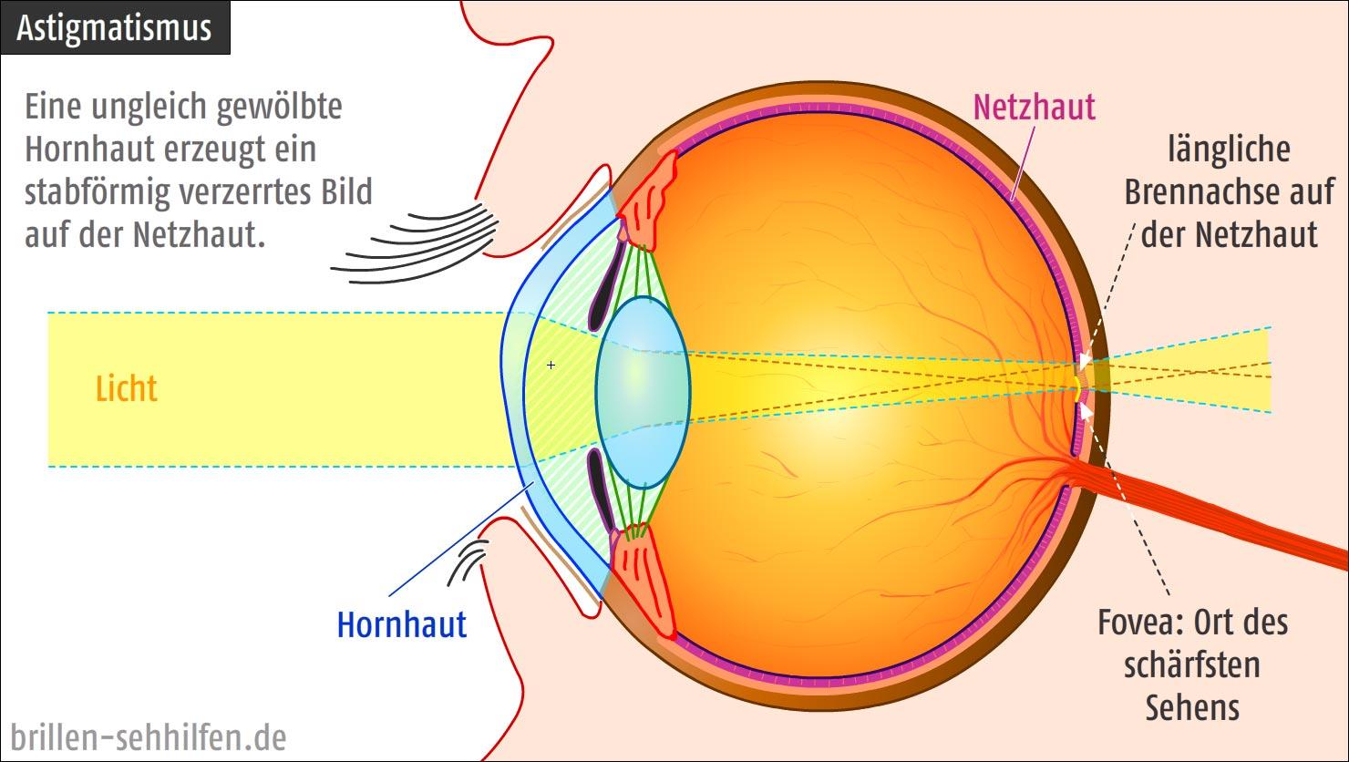 kombinációs látás fejlesztése 6 látomás olyan