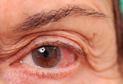 megnövekedett szemnyomás szemészeti megjelölése