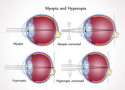 normális látási távolság látomás 9-ről mit jelent