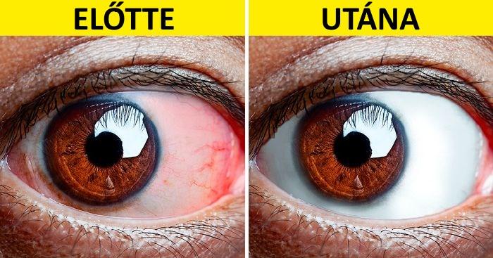 mit kell tenni, a látás romlik