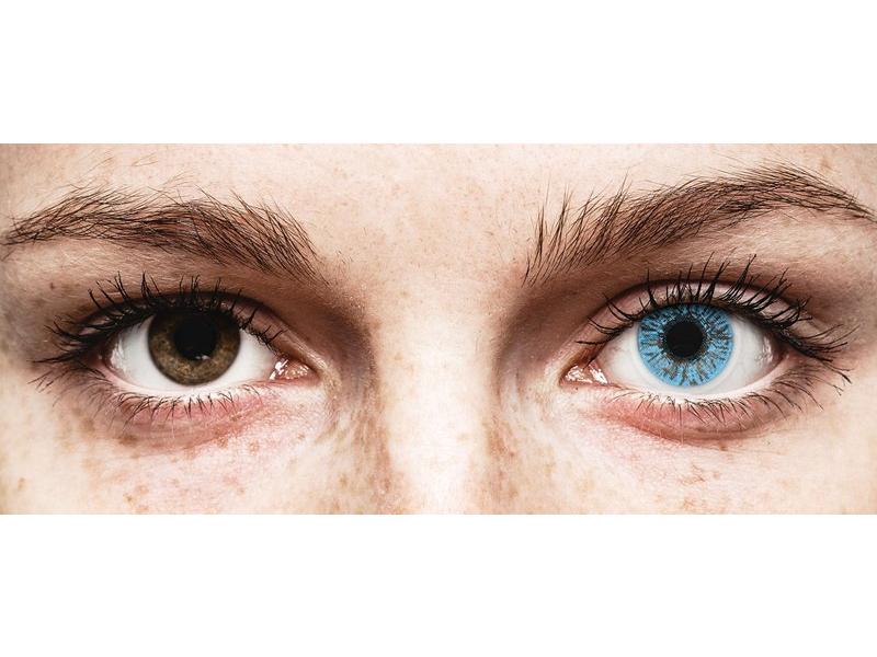 hyperopia műtét kora szag és látvány