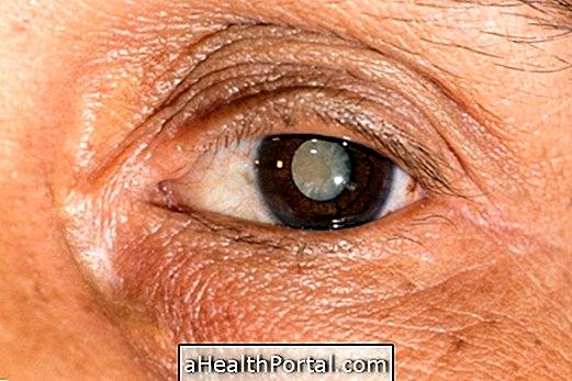 hogyan lehet javítani a látási szürkehályogot