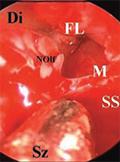 látás a meningioma eltávolítása után