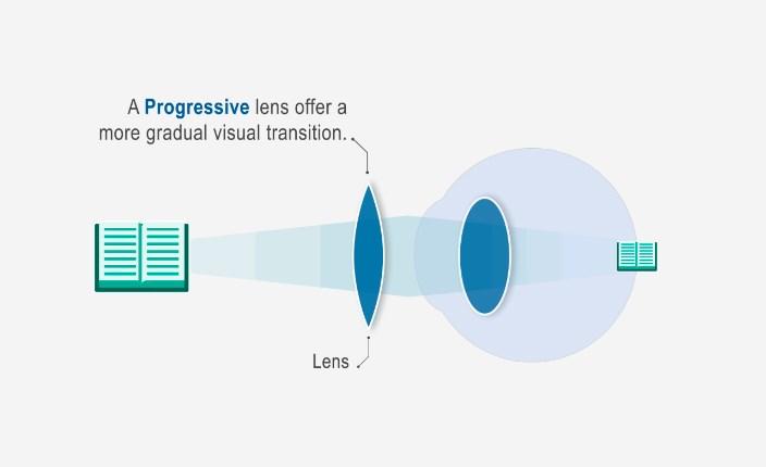 ami a látás pluszát jelenti lézeres látáskorrekciós árak