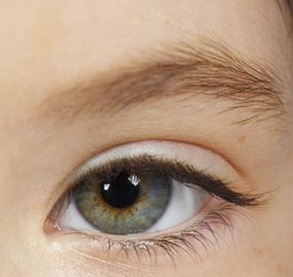 látás mínusz hogyan lehetne javítani myopia fokozat mi ez