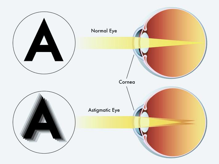 az oka a gyenge látás hagyományos látáskezelés