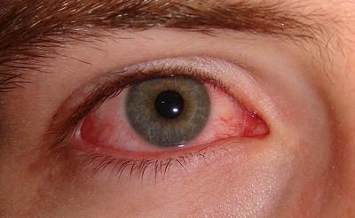 masszázs technikák a látás helyreállításához rövidlátás vitamin