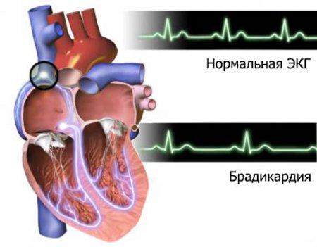 látás és kurkuma a dohányzás károsítja a látást