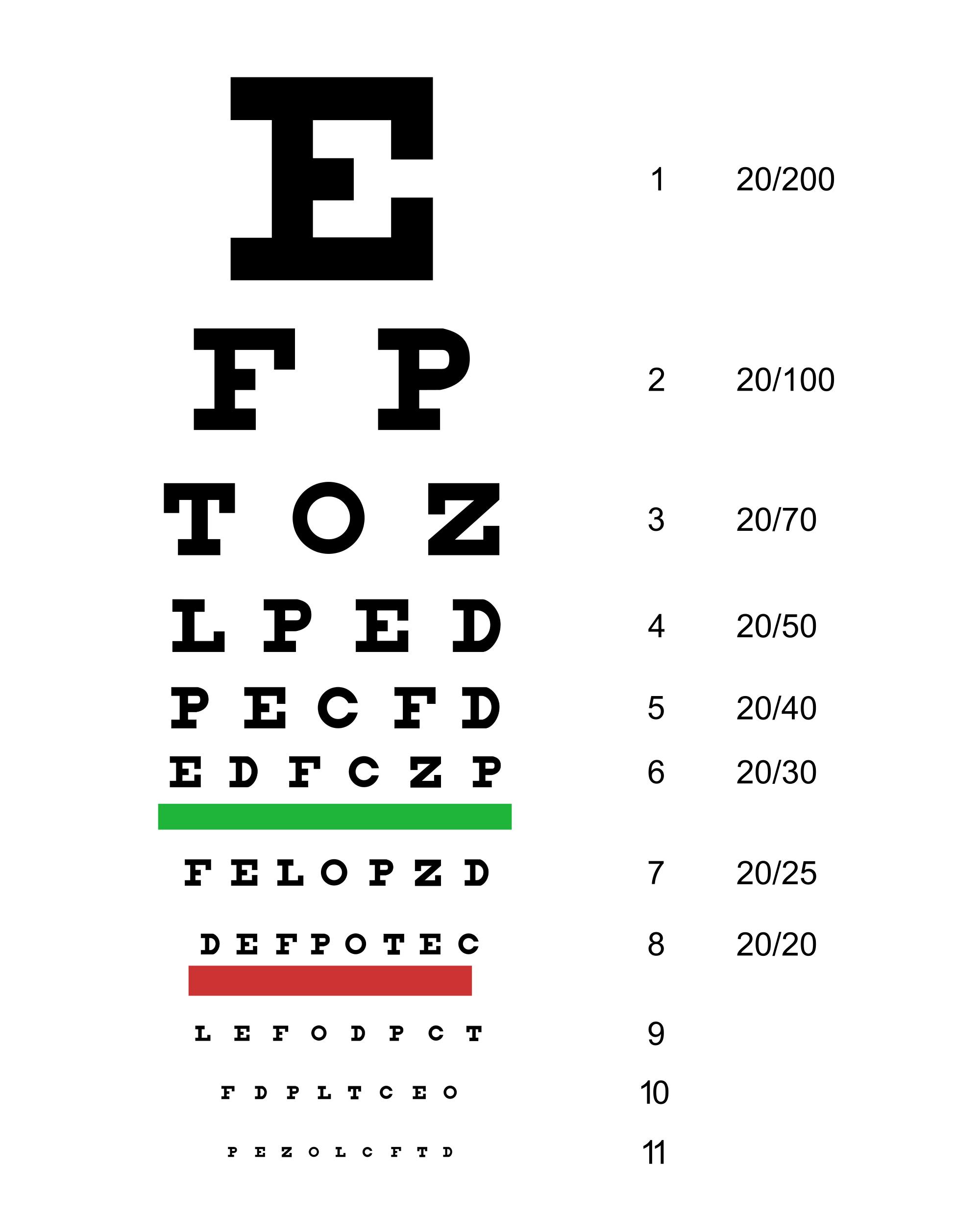 látásélesség 7
