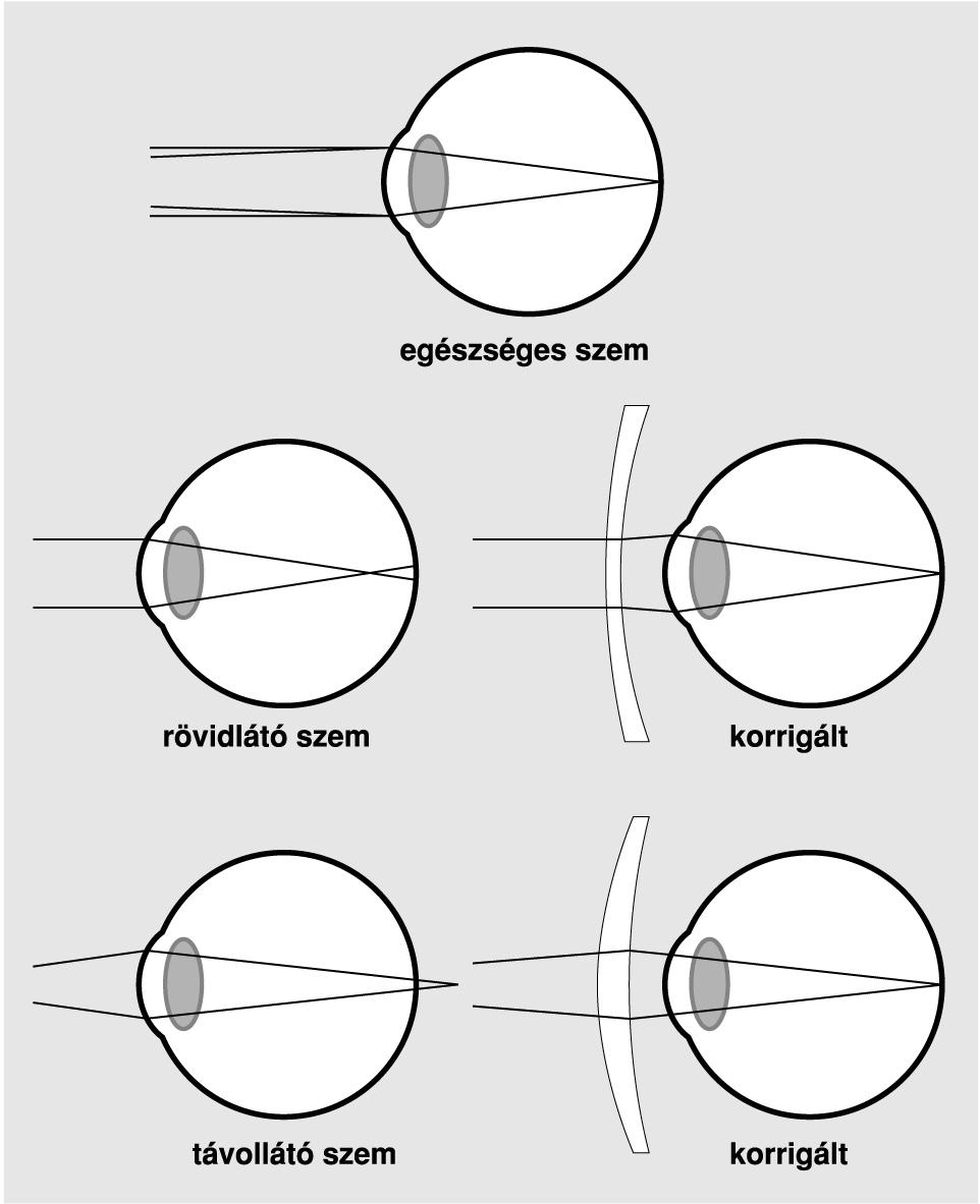 látás szédülés egyedül javíthatja a látását