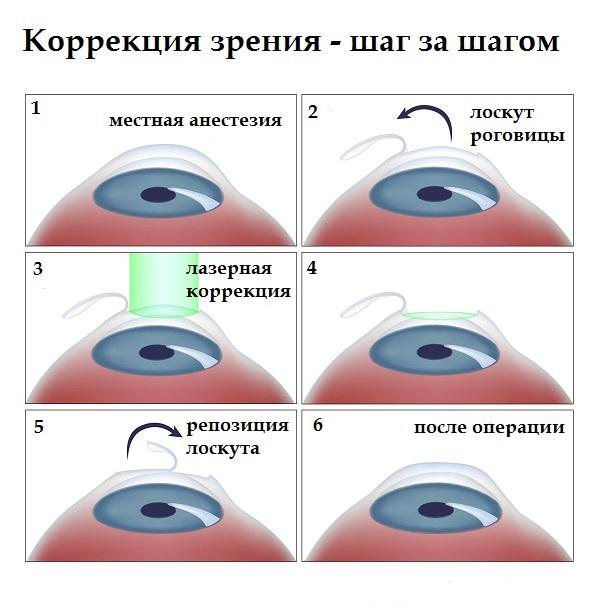 alternatív látáskezelés