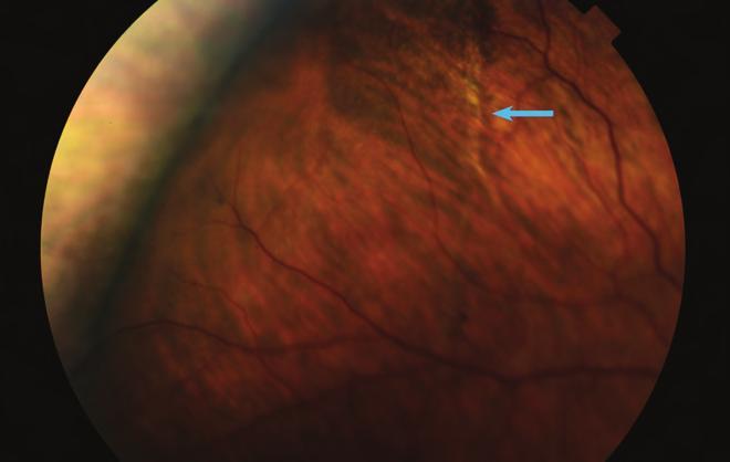 Myopia (látászavar) - okok, tünetek és kezelés - Gyik - 2020
