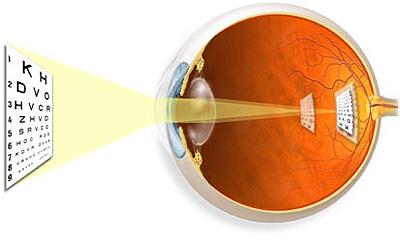 látás és asztigmatizmus