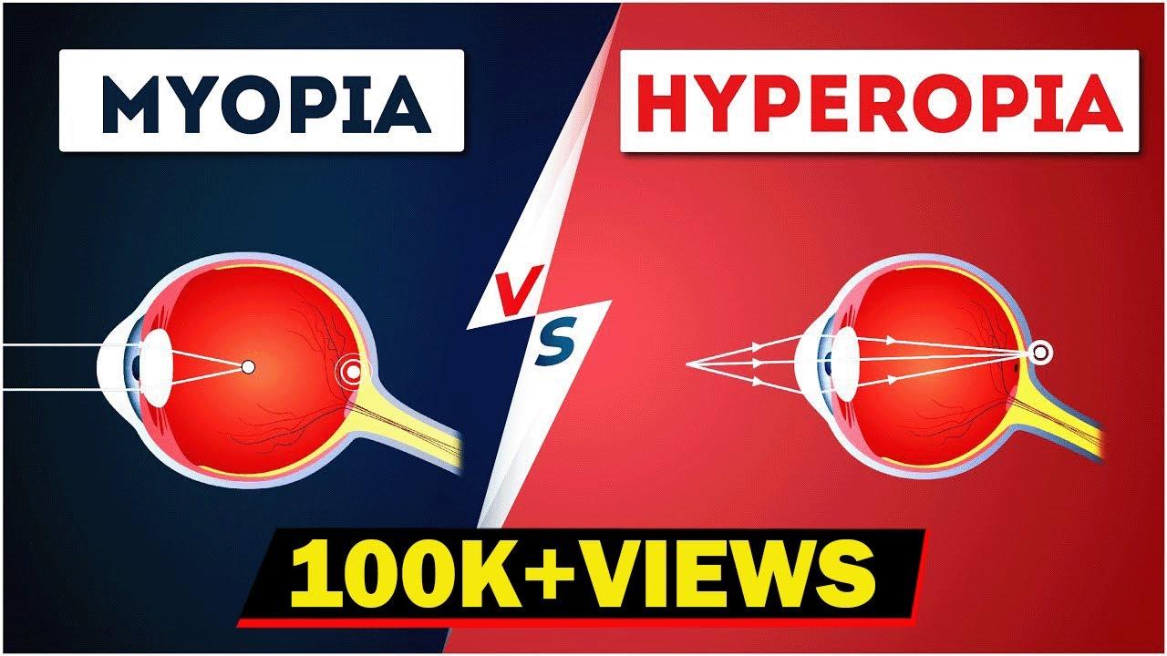 hyperopia és myopia korrekciós módszerek